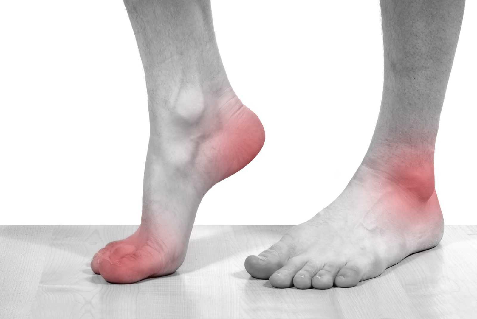 колхицин и подагра боли в суставах