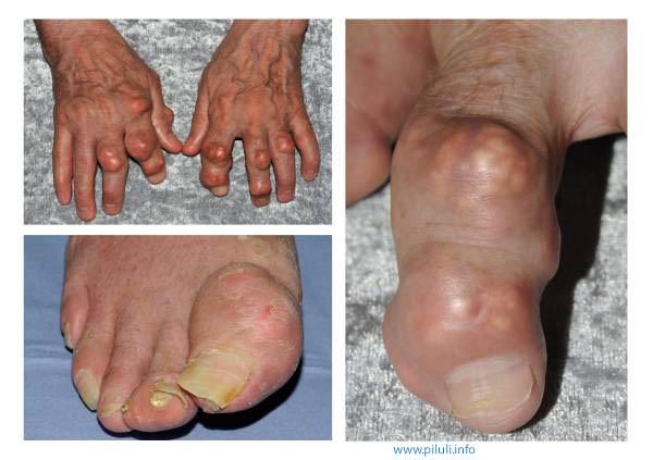 подагра пальца на ноге
